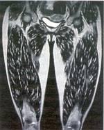 Zysten eines Schweinebandwurms in der Oberschenkelmuskulatur